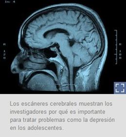 El Cerebro de Nios y Adolescentes: El Cerebro del Adolescente
